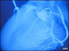 An angiogram of the human heart showing an artificial valve inserted (generic image)