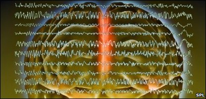 Brain waves in epilepsy: Pic: Sovereign, ISM, SPL