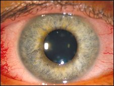 Close-up of inflamed eye