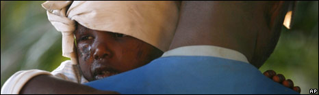 Injured child in Port au Prince