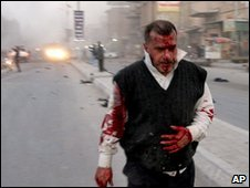 A wounded man is seen after a bombing in Najaf, Iraq