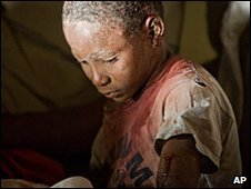 Child victim of Haiti earthquake