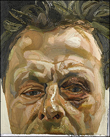 Self-Portrait With A Black Eye, by Lucian Freud.