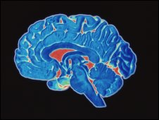 CT (Cat) scan of a healthy brain