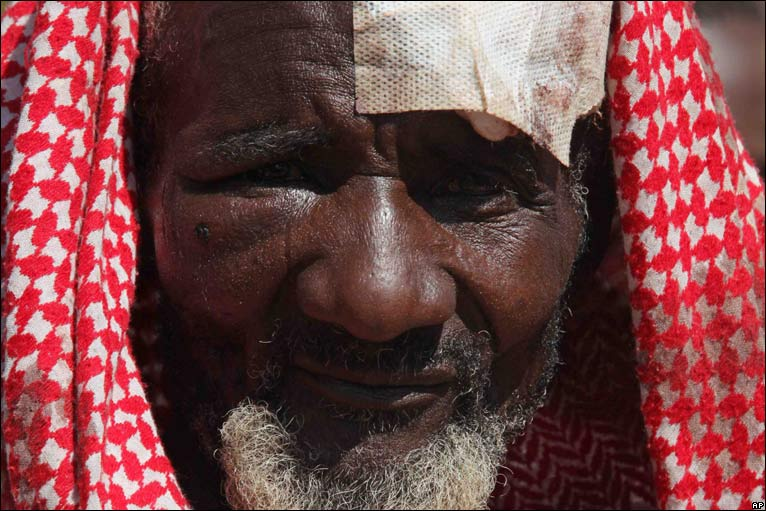 Ibrahim Sulaiman wears a plaster covering an injury sustained in the Jos violence