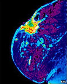 Breast MRI scan showing cancer