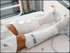 Compression stockings to prevent DVT