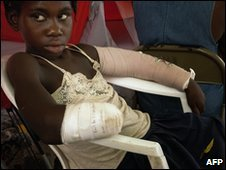A recent amputee recovers at a hospital in Port-au-Prince (26 January 2010)