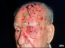 Man with bad case of shingles on his head