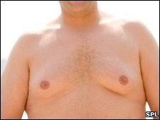 Man with overdeveloped breast area