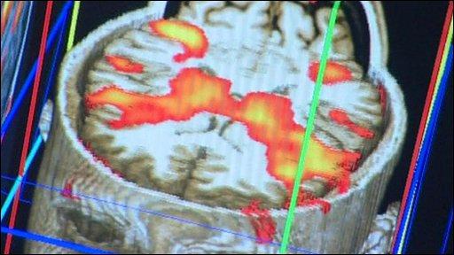 Digital cross-section of a brain