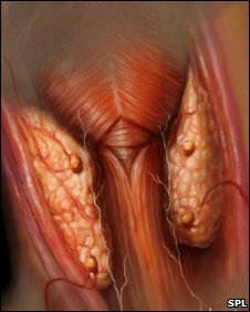 Parathyroid gland. Pic: Anatomical travelogue/SPL