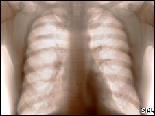 X-ray of a healthy set of lungs