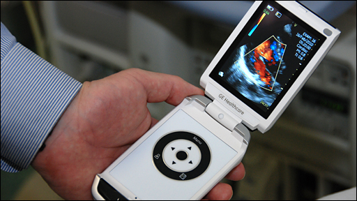 Vscan handheld ultrasound machine