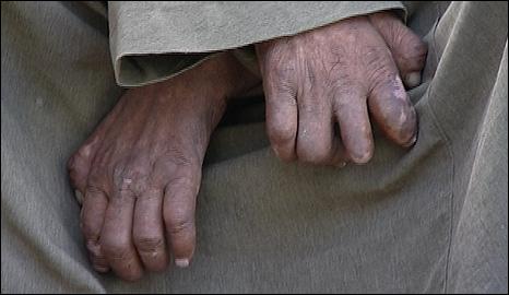 Hands of an Egyptian leper