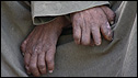 Hands of an Egyptian leper