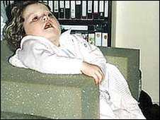 Child with Rett's syndrome (generic)