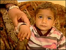 Young boy with birth defect