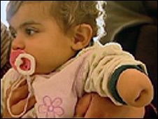 Baby girl with birth defect