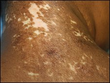 An area of vitiligo which has been treated