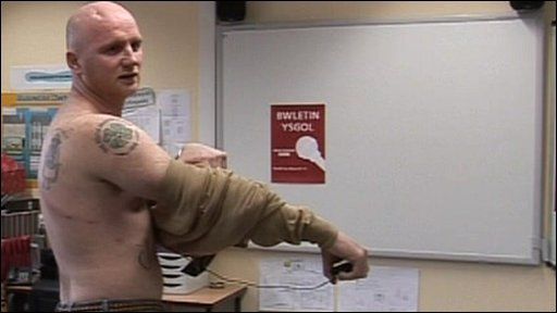 Ex-Ysgol Gyfun Gwyr pupil and footballer John Hartson shows school reporters the scars on his back from a cancer operation.