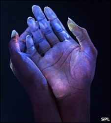 Bacteria on hands seen in ultraviolet light (SPL)