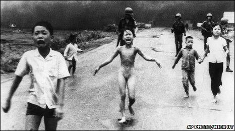 Kim Phuc after napalm attack, Vietnam 1972