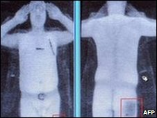 A computer screen showing the results of a full body scan (generic)