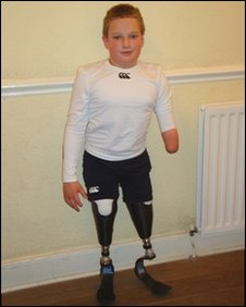 Will had both his legs below the knee and part of his left arm amputated due to meningitis