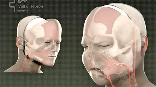 Face transplant graphic