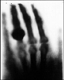 Wilhelm Röntgen's X-ray image of the hand of his wife Anna