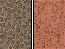 Leukaemia cells before and after treatment