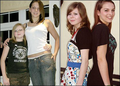 Hayley with friend Hannah Muddle before and then after treatment