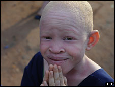 Albino child (file photo)