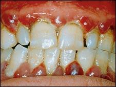 Gum disease (generic)