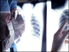 Surgeons examine chest x-ray (generic)