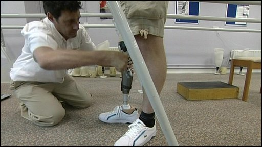 Senior Prosthetist Ian Jones