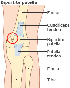 Knee graphic