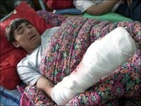 An injured ethnic Uzbek boy in hospital in Osh