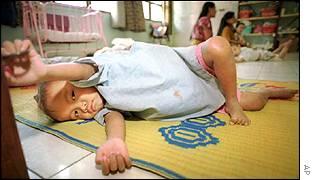 An HIV-positive orphan