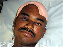 Jitendra two days after surgery to remove a haematoma