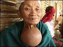BBC NEWS | South Asia | Violence haunts Bhutan's refugees