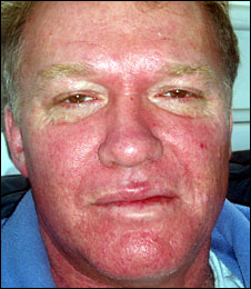Measles On Adults 42
