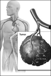 Diagrama sobre la manera en que el ascorbato actúa frente a las células cancerígenas
