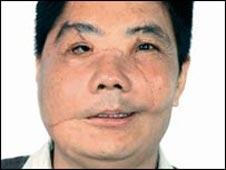 Face transplant 'double success'