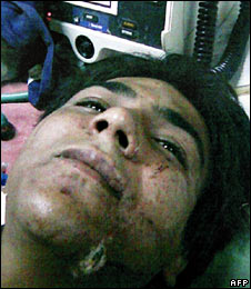 Mohammad Ajmal Amir Qasab, pictured in hospital in an image released on 1 December 2008