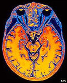 Brain scans 'can distinguish memories', say scientists