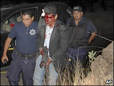 Police escort a wounded bodyguard in Michoacan