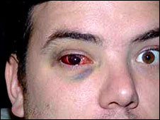 BBC Sport - Rugby Union - Player blinded in one eye after ...